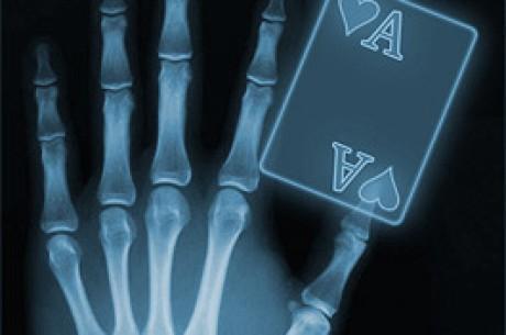De anatomie van een hand