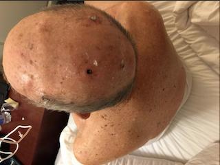 Sobre la salud de Doyle Brunson: Cirugía programada para el 2 de marzo 101