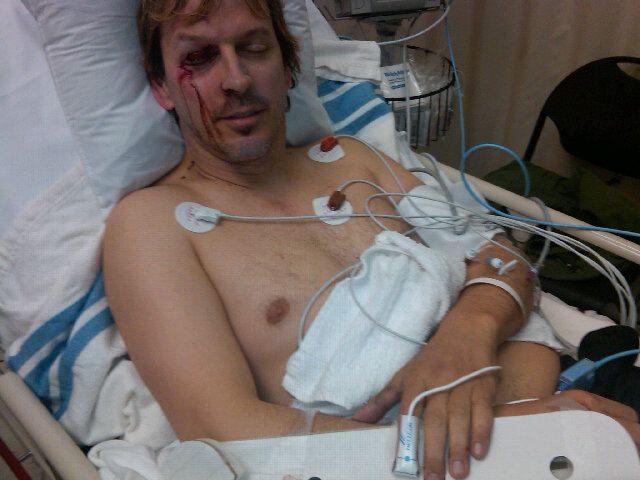 Phil Laak hospitalizovan nakon nesreće na četvorotočkašu 101