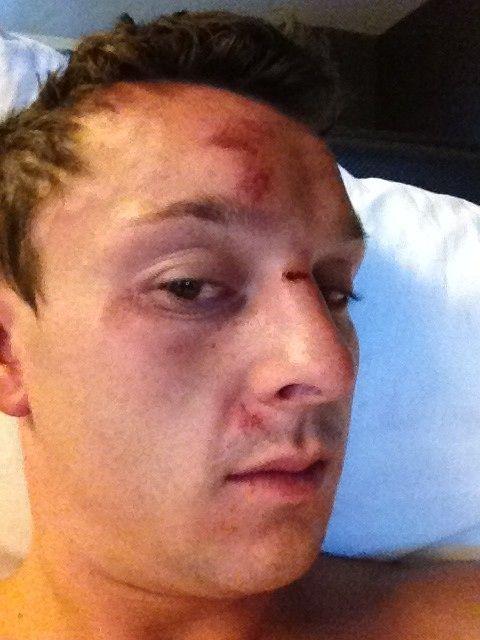 Sam Trickett Jumped By Six Men In Las Vegas 101