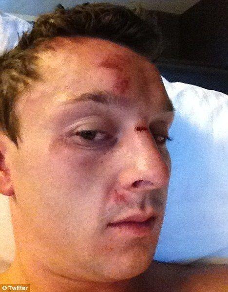 Eile üle 10 miljoni dollari võitnud Sam Trickett langes rünnaku ohvriks 101