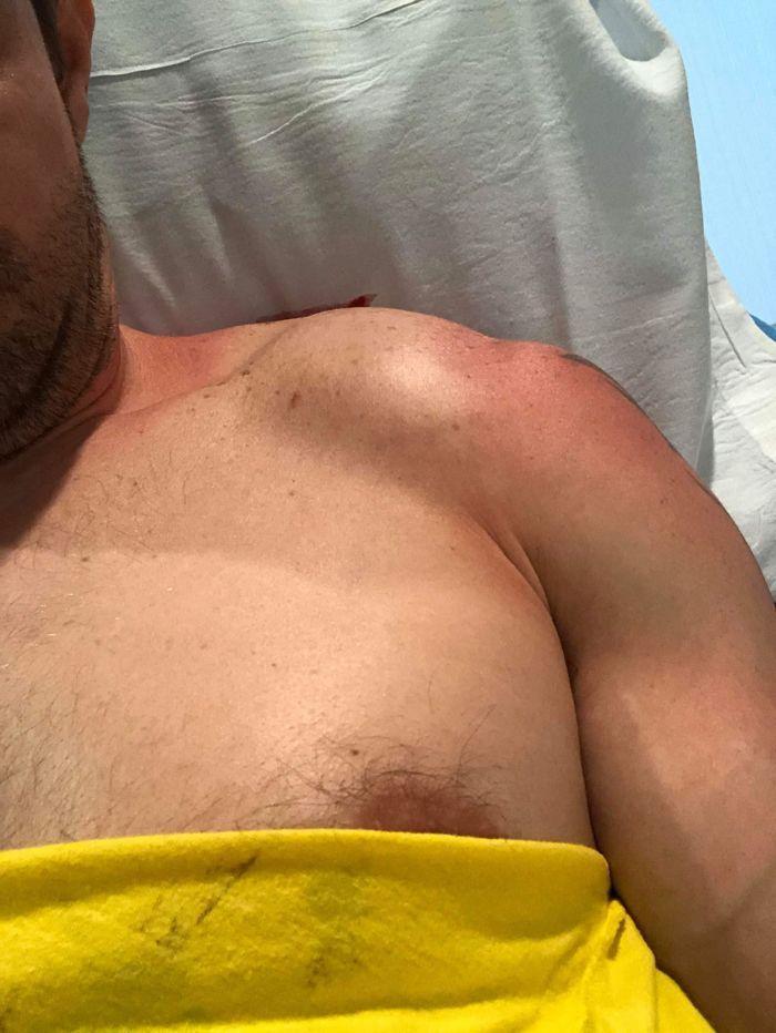 Miles' severe shoulder injury.