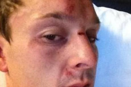 Véresre verték Las Vegasban Sam Trickettet