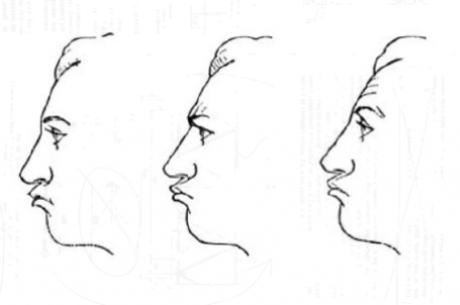 Открития за тилта – различните лица на страданието